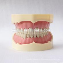 28pcs dents noir modèle anatomique FDental pour l'enseignement scolaire 13006, dents de rechange Siut pour Frasaco mâchoire