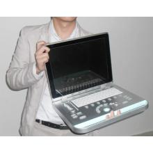 Portable color Doppler Ultrasound Machine