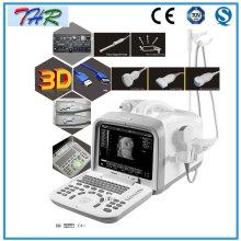 Портативное ультразвуковое диагностическое оборудование (THR-US6602)