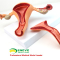 SELL 12442 Uterine Structure Anatomical Model Anatomy Reproductive System