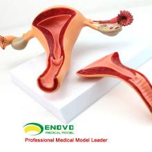 VERKAUFEN Sie 12442 Uterine Struktur Anatomisches Modell Anatomie Reproduktives System