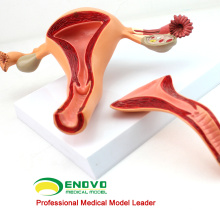 VENDER 12442 Estructura uterina Anatomical Model Anatomy Reproductive System