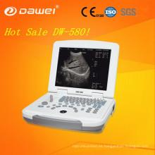 Precio de la máquina de ultrasonido portátil 2D y equipo ultrasónico móvil blanco y negro más barato