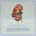 PNT-0739 China Best Kidney with best service and low price