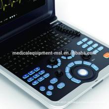 MSLCU28M - Farbdoppler tragbare Ultraschallmaschinen