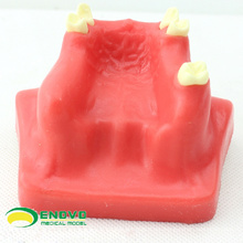 VENDER 12615 Modelo de práctica de estiramiento del seno dental utilizado para practicar
