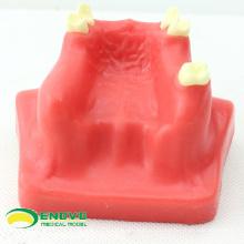 Продать 12615 зубов используется модель синус Лифт практика для практикующих