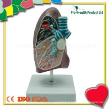 Doença de demonstração educacional Modelo anatômico do pulmão