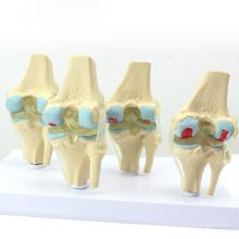 JOINT12 (12359) Modèle d'anatomie médicale Modèles d'articulation du genou en 4 stades de l'arthrose