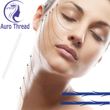Auro Face Lifting Thread Pdo naald Absolute hechtdraad