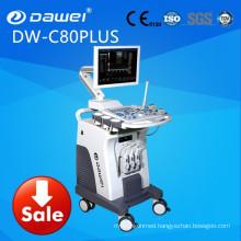 2017 China trolley fetal ultrasound scanner ultrasound machine price