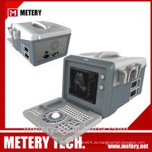 Máquina de ultrasonido digital portátil MT128V de METERY TECH.