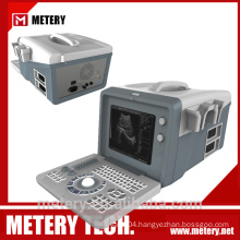 Portable digital ultrasound machine MT128V from METERY TECH.