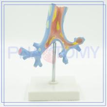 PNT-0751 Hot sale bronchi and bronchopulrnonary segments model for medical university
