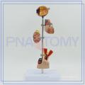 PNT-0758 diabetes set model for hospital