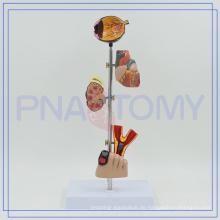 PNT-0758 Diabetes-Set-Modell für Krankenhaus