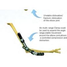 Ellenbogen Fixateur System