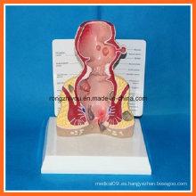 Modelo de enfermedad común del recto humano