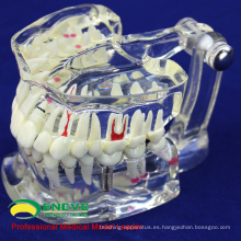 VENDER 12567 Dental transparente de tamaño natural con diente de implante