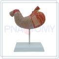 PNT-0460 Ampliación de 2 partes del modelo de estómago humano