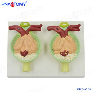PNT-0760 modèle anatomique de rein de protéine d'urine
