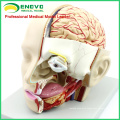 BRAIN04(12401) Medical Anatomy Section of Head with Brain, 4-Parts, Brain Models 12401