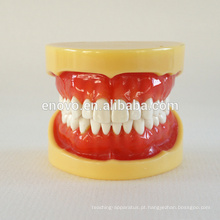 China Medical modelo anatômico dura gomas 28 dentes padrão maxilar dental modelo 13013