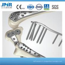 China Processing Fracture Fix Trauma Appareil orthopédique Metacarpus Plaques Plaque de verrouillage, implants orthopédiques, 2,5 T Plaque de verrouillage