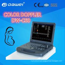 DAWEI DW-C60PLUS Portable Color Doppler Ultrasound CE ISO