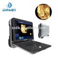 DW-C300 High-End-tragbare 4D Doppler-Ultraschallgerät