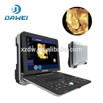 DW-C300 Ultrasonido portátil 4D doppler máquina de ultrasonido