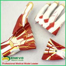 MUSCLE09 (12032) Anatomía seccional de la mano de nervios y vasos sanguíneos Modelo, anatomía humana Modelo de la mano 12032