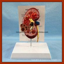 PVC menschliche Niere Anatomisches Modell zum Verkauf