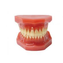 TM-B6 Orthodontic Model After Orthodontic Treatment