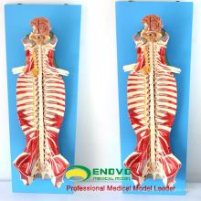 MUSCLE17 (12311) Medizinische Ausbildung Verwenden Sie Spinal Canal Anatomy Modell 12311