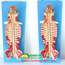 MUSCLE17 (12311) Medical Education Use Spinal Canal Anatomy Modelo 12311