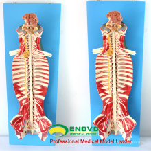 MUSCLE17(12311) Medical Education Use Spinal Canal Anatomy Model 12311