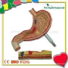Modelo de anatomia patológica do estômago para educação de pacientes