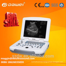 laptop ultrasound scanner & ultrasound dawei Welcome your enquiry for laptop ultrasound scanner & ultrasound dawei!