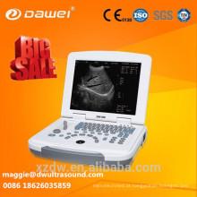 scanner de ultra-som portátil e ultra-som dawei Bem-vindo a sua pergunta para o ultra-som scanner de ultrassom portátil dawei!