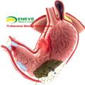 STOMACH04 (12537) Modelo de Estômago Gástrico Modelo de Doença Humana para Estudo da Ciência Médica