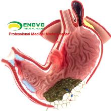 STOMACH04 (12537) Magen-Darm-Modell des menschlichen Magens für medizinische Studie