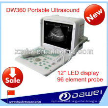 portable Ultrasound price