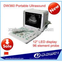 preço portátil do ultra-som