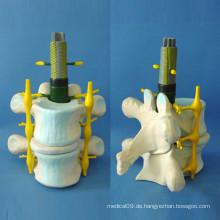 Medizinische Lehre Menschliches Spinal Skelett Vergrößertes Modell (R140104)