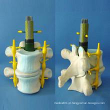 Ensino Médico Esqueleto Espinhal Humano Modelo Avançado (R140104)