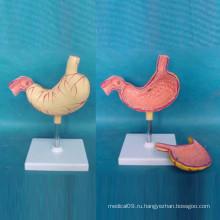 Медицинская демонстрационная модель язвы желудка человека (R100202)