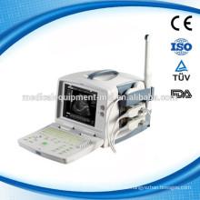 Klassische 3D Ultraschallmaschine, tragbar! MSLPU30M