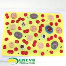HEART18 (12496) Modelo educativo de células sanguíneas humanas, modelo de células sanguíneas para ciencias médicas