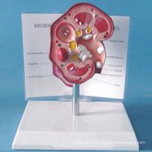 Medizinische Lehre Menschliches Nierenkalkül Anatomisches Modell (R110107)